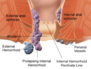 How To Prevent and Treat Haemorrhoids