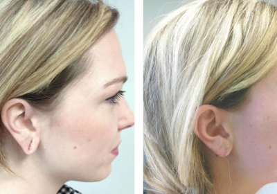 Rediscovering Earlobe Beauty With Surgery