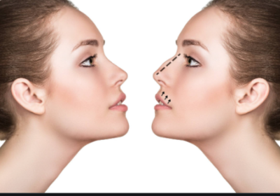 X Things to Know About Aesthetic and Functional Rhinoplasty